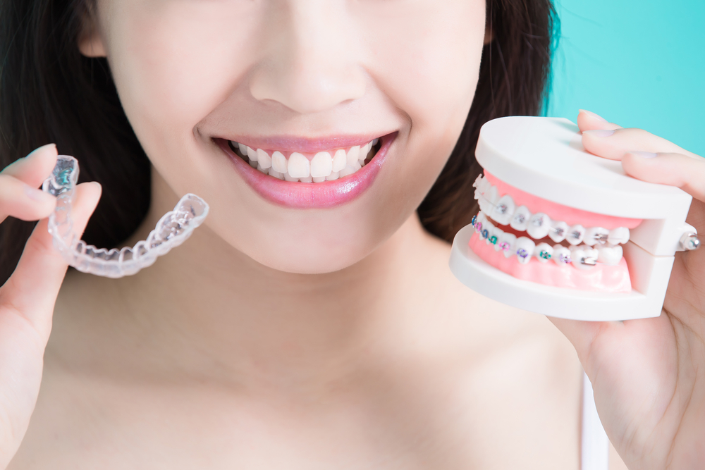 advantages of invisible braces