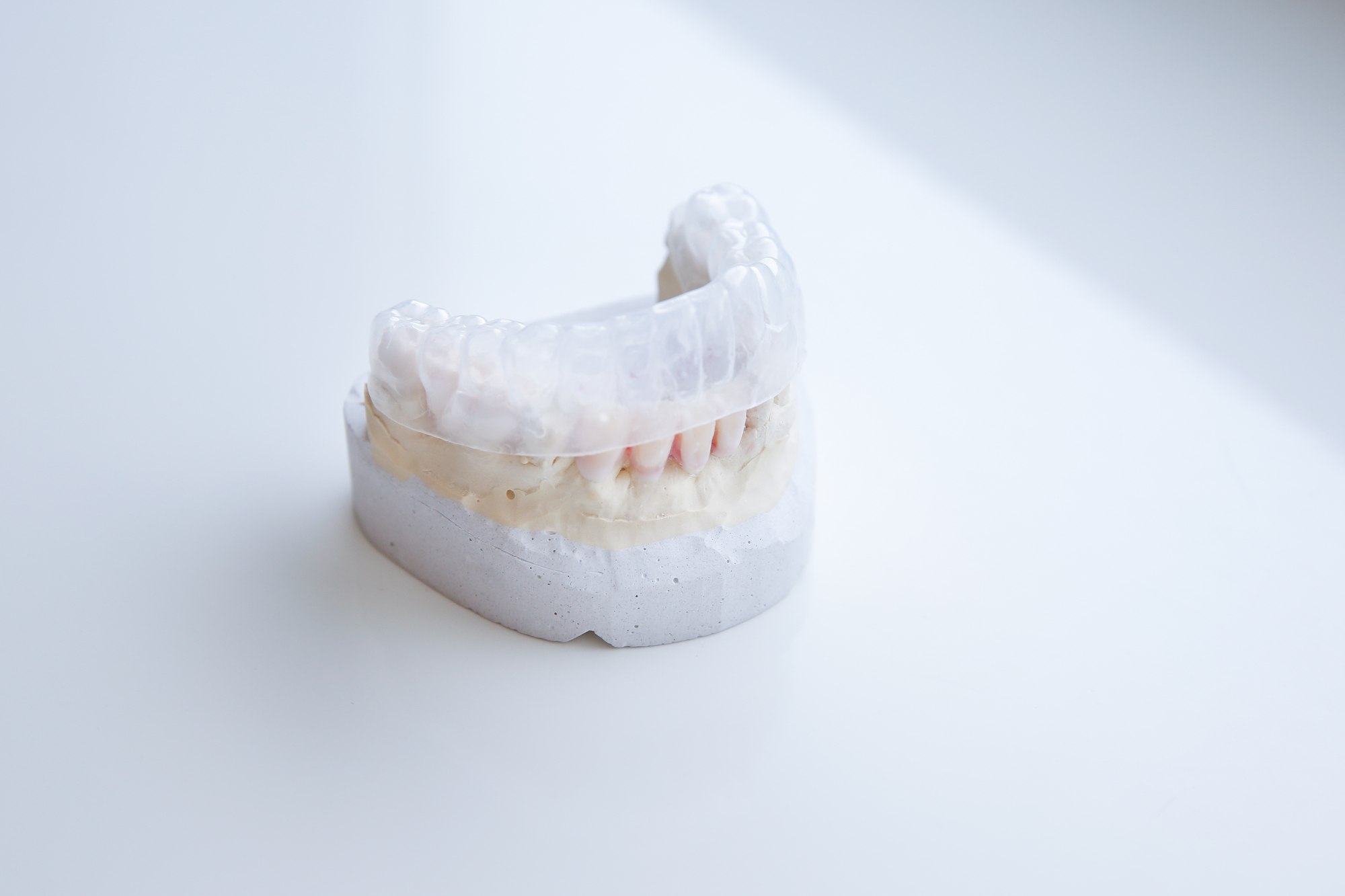 clear aligner on dental model