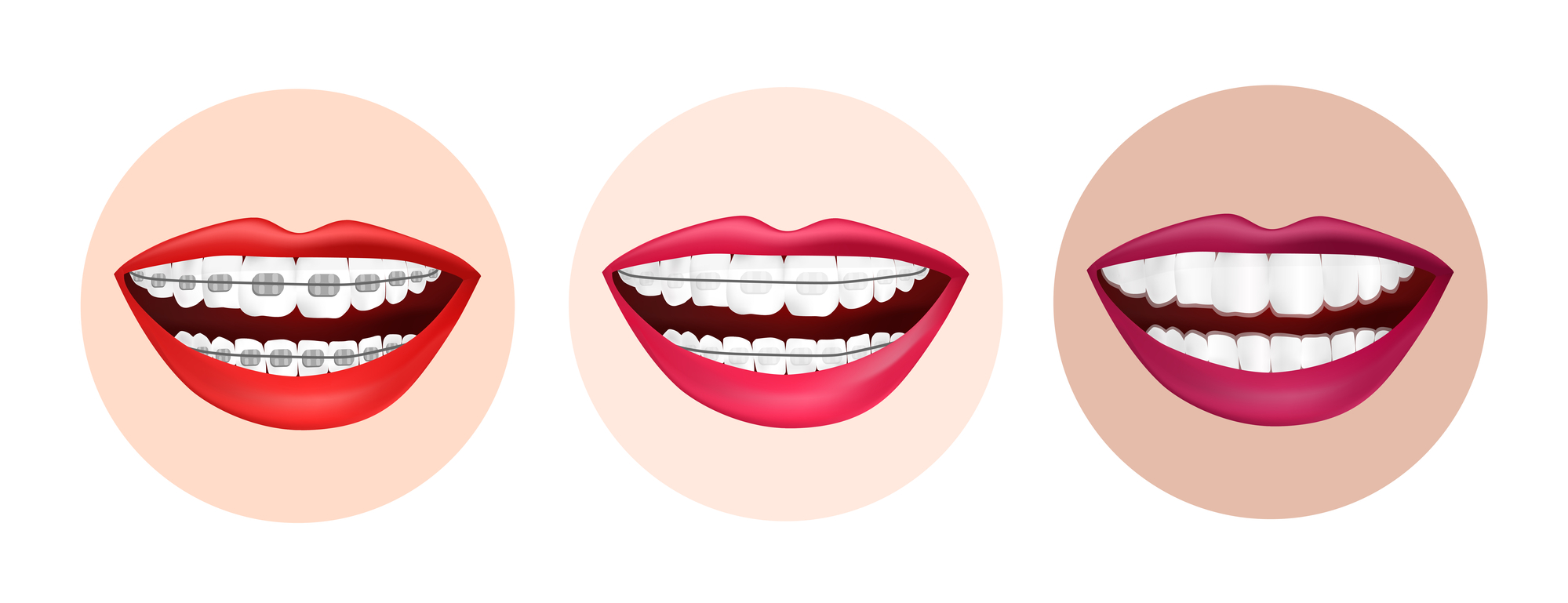 image of mouth with traditional braces, clear braces, and clear aligners